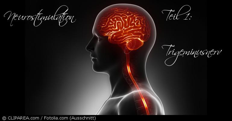 Neurostimulation Trigeminusnerv